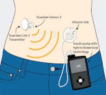 insulinova-pumpa-2